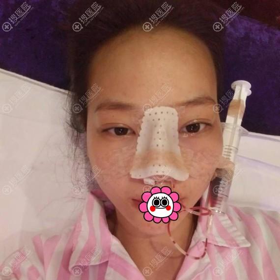 福州涣美鼻综合术后即刻