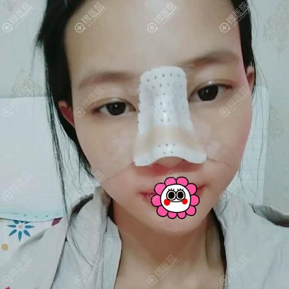 鼻综合术后三天用鼻夹固定
