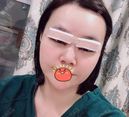 中山韩妃双眼皮案例即刻效果