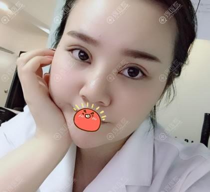 中山韩妃李光琴双眼皮开眼角案例