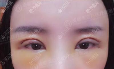 成都美立方切开双眼皮术后7天恢复效果