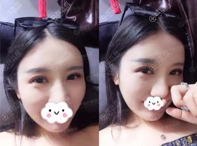 闫家峰切开双眼皮术后15天恢复效果图