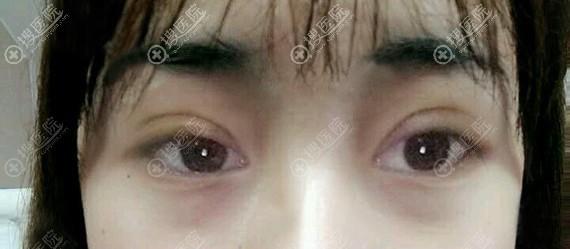 福州涣美双眼皮术后7天拆线后效果