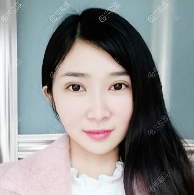 郑州华山医院胡斌医生做的双眼皮案例