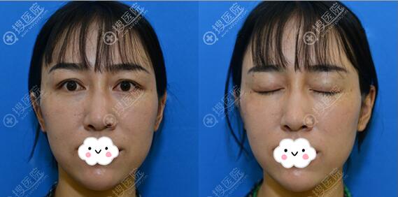 王海沐脂肪填充+双眼皮修复术前照片