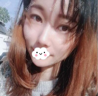 长沙湘美汇解西吴东辉面填案例