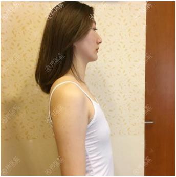 在上海yestar做隆胸手术前的样子
