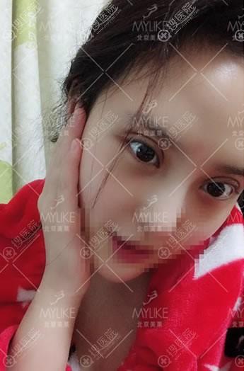 北京美莱做双眼皮修复案例即刻效果