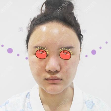 北京和美嘉刚做完面部吸脂图片
