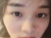 确定上海瑰康是正规整形医院后找吕辉做了肋软骨隆鼻和双眼皮