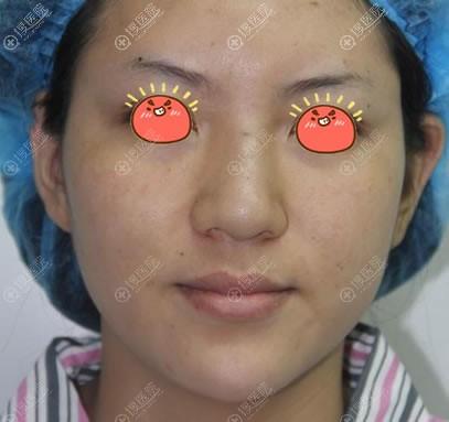 在西安鹏爱悦已做隆鼻术前