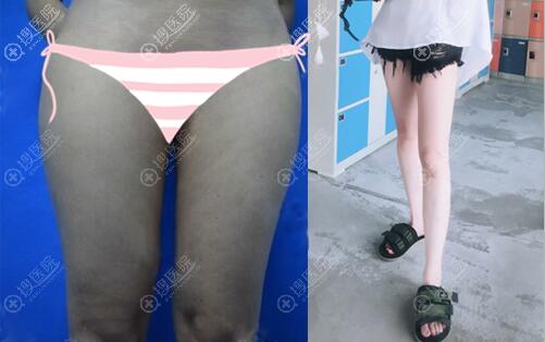深圳仁安雅李政权大腿吸脂术后效果图