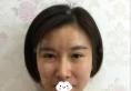 深圳丽港丽格刘虎全面部自体脂肪填充术后我看自己都看呆了