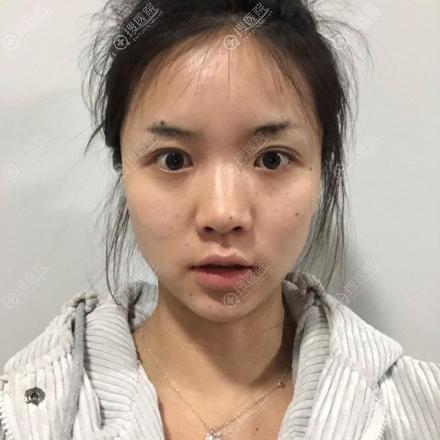 在上海韩镜做鼻子的术前照片
