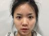 去上海有名的网红整形医院上海韩镜找任钟赫医生做了鼻综合隆鼻