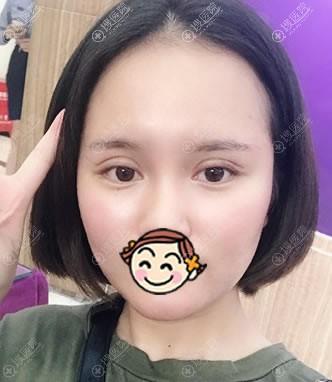 北京雅靓刚做完双眼皮的图片