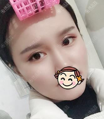 北京雅靓陈林叶割双眼皮案例