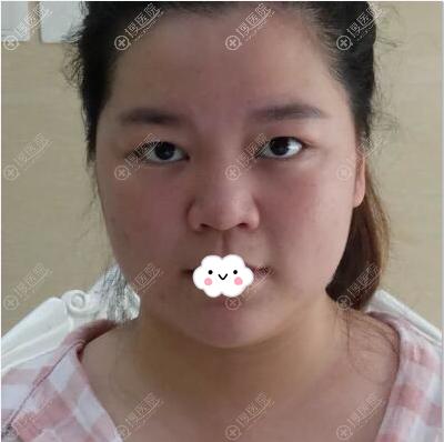面部吸脂术前曾打过保妥适