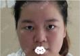 深圳伊婉整形医院王力佳给我做的面部吸脂瘦脸手术效果堪比磨骨