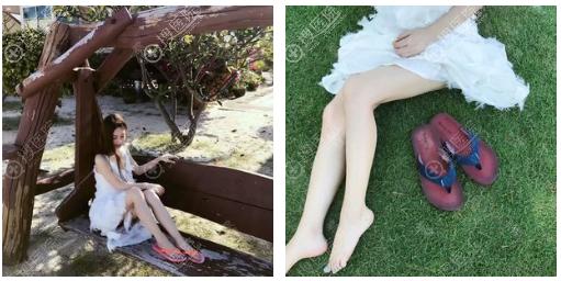 上海玫瑰大腿吸脂瘦身效果怎么样
