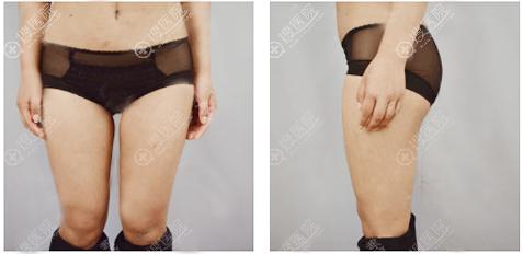 西安高一生大腿抽脂术前照片