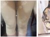 上海玫瑰吸脂多少钱?公开我找邹功伟做大腿环吸个人经历和价格