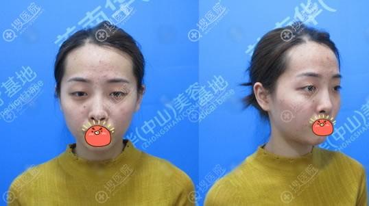 中山美南华医院员工做双眼皮隆鼻前