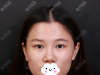 找深圳美莱陈磊主刀给我做切开双眼皮和耳软骨隆鼻分享案例效果