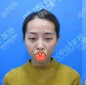 捕捉到一仙女找中山美南华医院时伟院长做双眼皮和隆鼻案例效果
