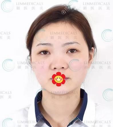 北京领医医美员工做隆鼻术前