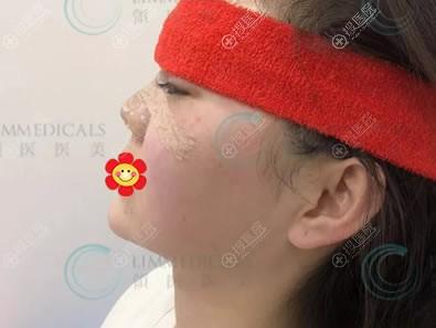 做完假体隆鼻即刻效果图