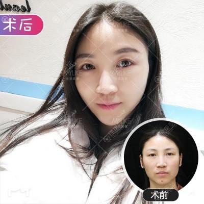 北京美莱宋长绪面部提升术案例
