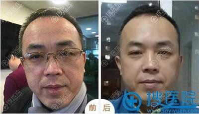 北京丽都石冰面部线雕提升案例
