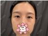 上海华美除了杜园园之外张朋做的双眼皮修复案例效果也很好看