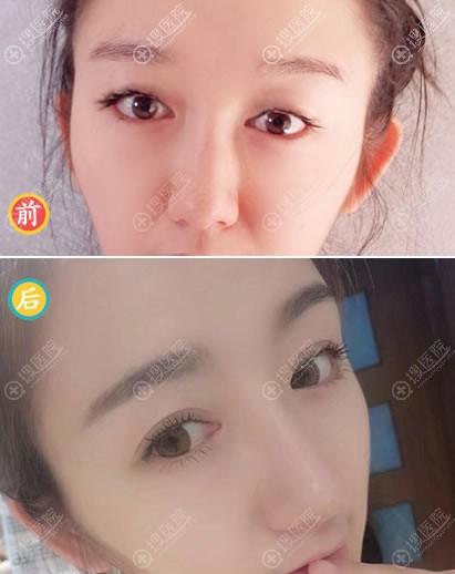 北京艺星季滢双眼皮案例对比图