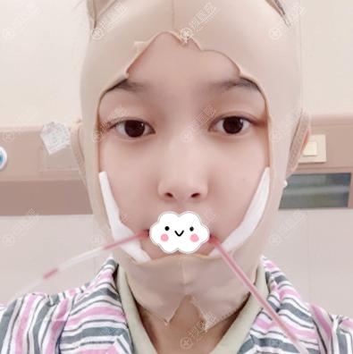 今天我来上海仁爱找刘先超做下颌角啦
