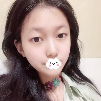 上海仁爱医院刘先超下颌角案例20天消肿图片