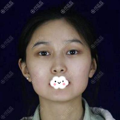 来上海仁爱医院找刘先超做下颌角术前照片