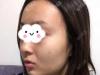 西安线雕哪家好?公开我去西安高一生找赵阳莉做的面部线雕案例