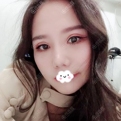 上海玫瑰邹功伟做双眼皮修复怎么样