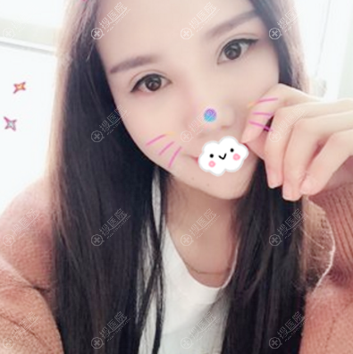 上海玫瑰邹功伟做的双眼皮修复案例图片