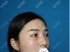 看了曹栋弼的磨骨案例图片后我去上海愉悦美联臣做了颧骨内推