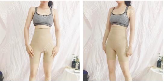 腰腹环吸+大腿吸脂术后5天穿塑身衣效果