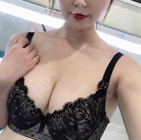 南京美贝尔张永升曼托隆胸案例