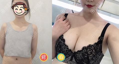 做曼托假体隆胸前后对比图片