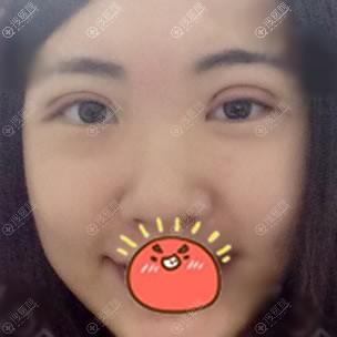 北京上上相刚做完双眼皮图片