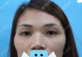 为了改善脸型,我在深圳丽港丽格找谢俊做了全面部脂肪填充手术