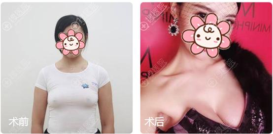 重庆华美赵敬国傲诺拉假体隆胸案例对比图