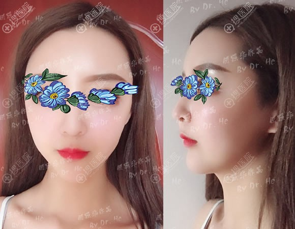 北京南加下颌角颧骨一起做案例