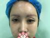 听说假体垫眉弓是上海丽质卢九宁的特色项目,做完秒变混血公主